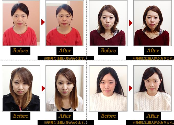 小顔矯正Before&After